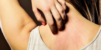 how to get of stress rash
