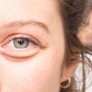 How to treat a Swollen Eye