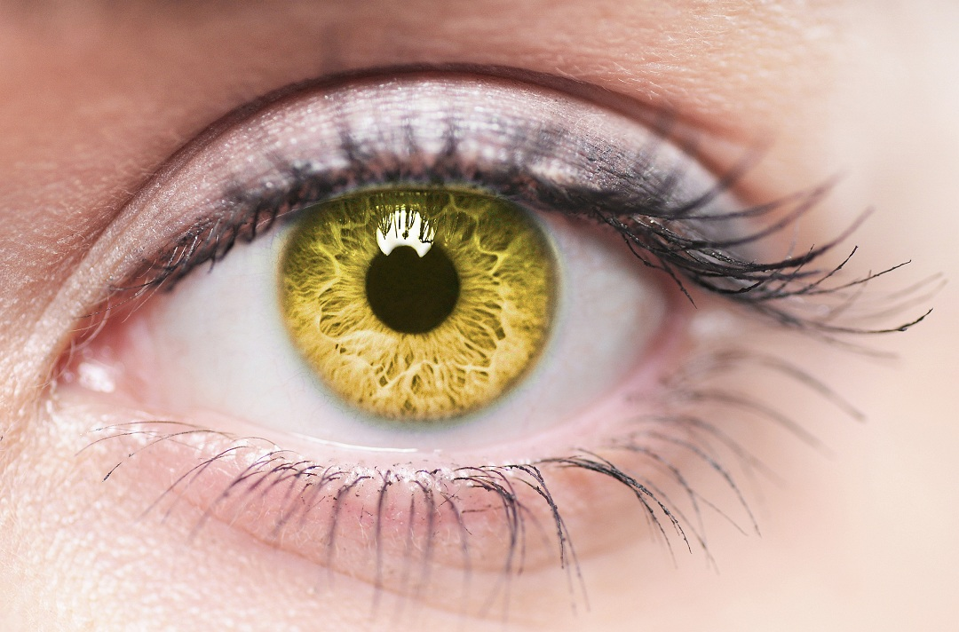 How to get rid of Yellow eyes