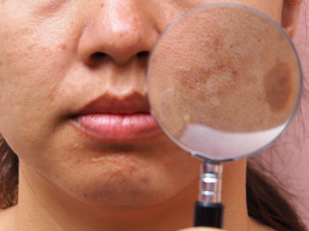 Aggravates blemishes
