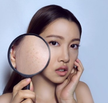 seborrheic keratosis home treatment