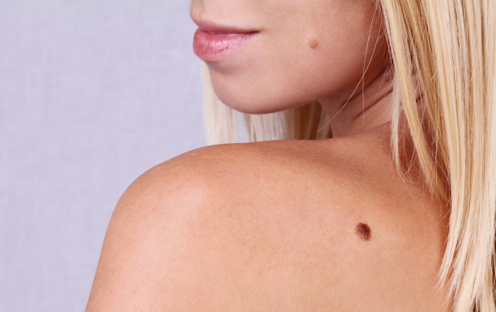 Skin tag on shoulder