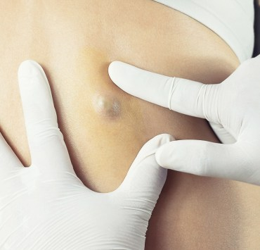 sebaceous cyst on skin