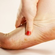 fungal infection natural remedies