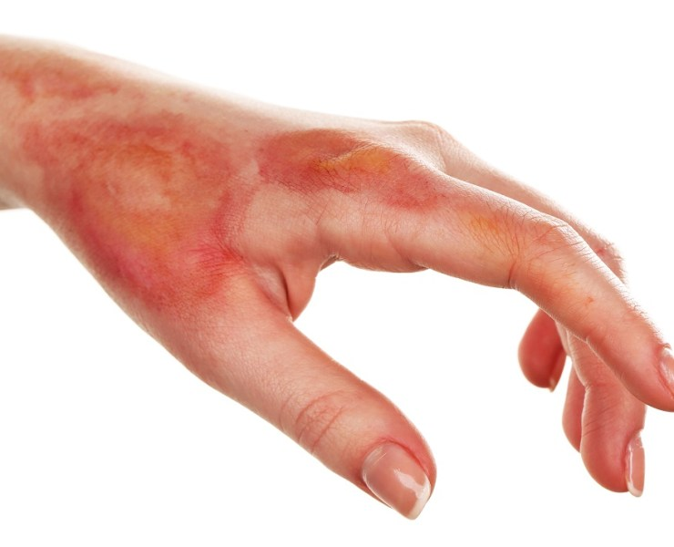 Use Coconut Oil for Burns