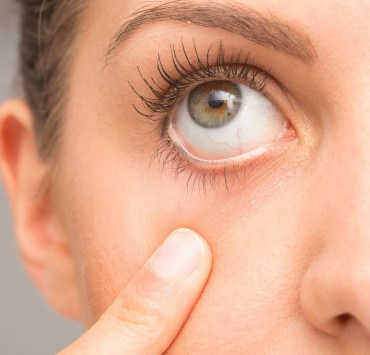 castor oil for dry eyes