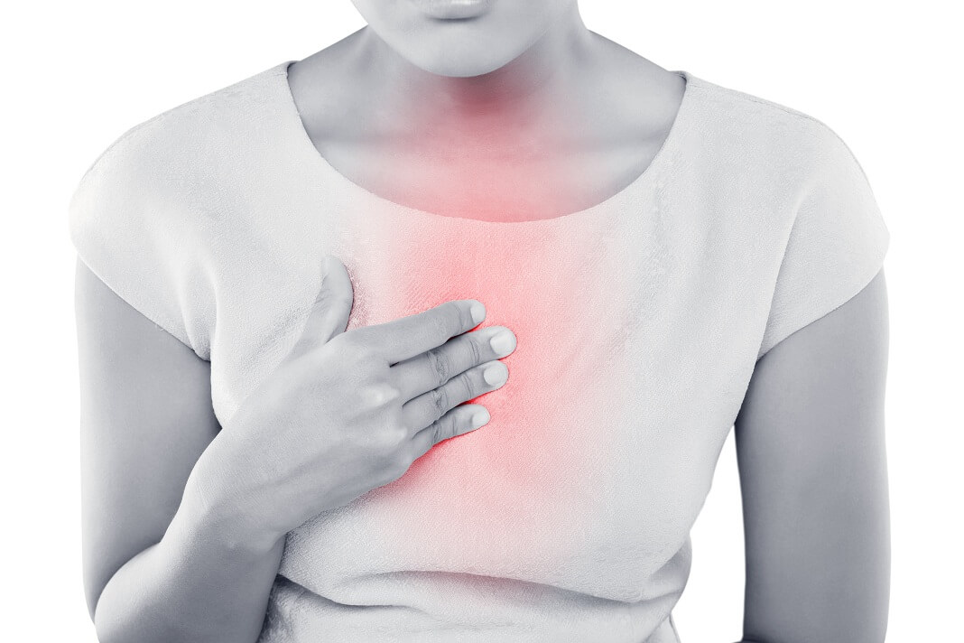 posture water prevent heartburn