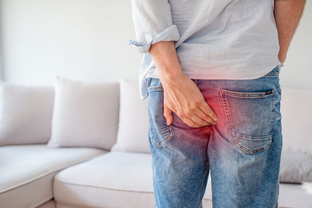 Cure Hemorrhoids with Coconut Oil