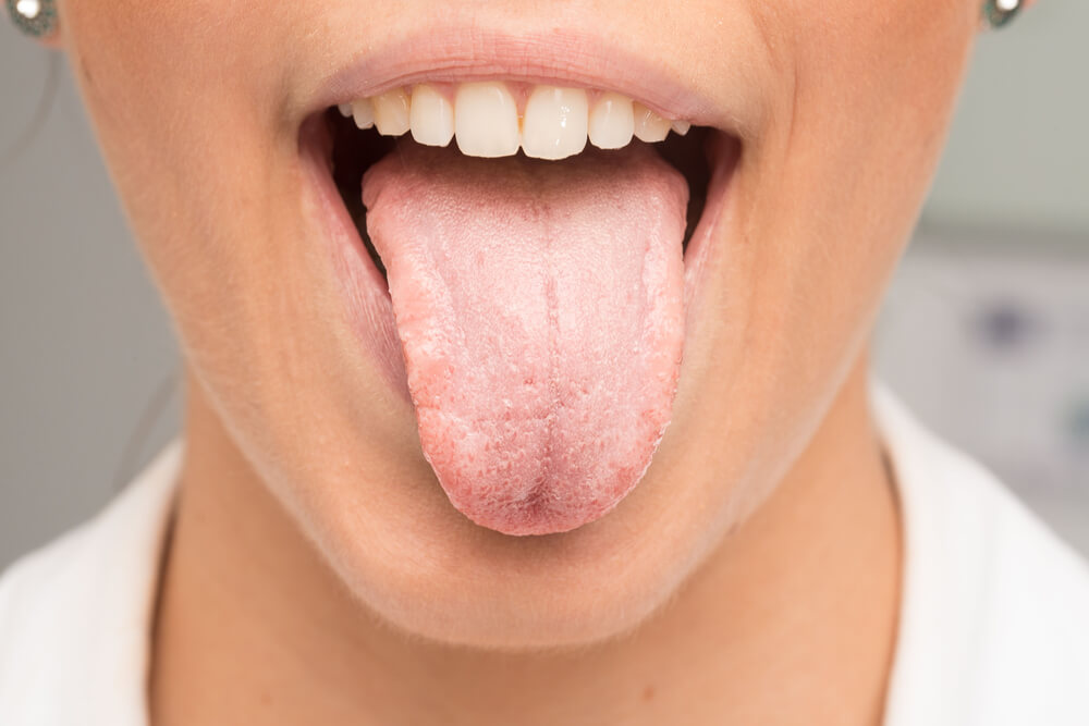Candida on tongue