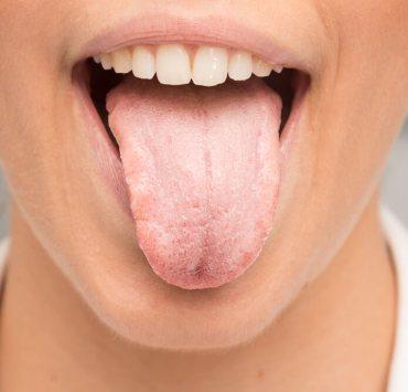 Candida on tongue