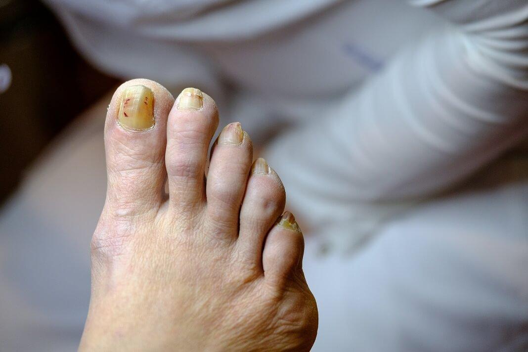 Remove toenail fungus with tea tree oil