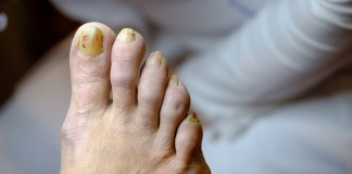 treat Toenail Fungus with tea tree oil