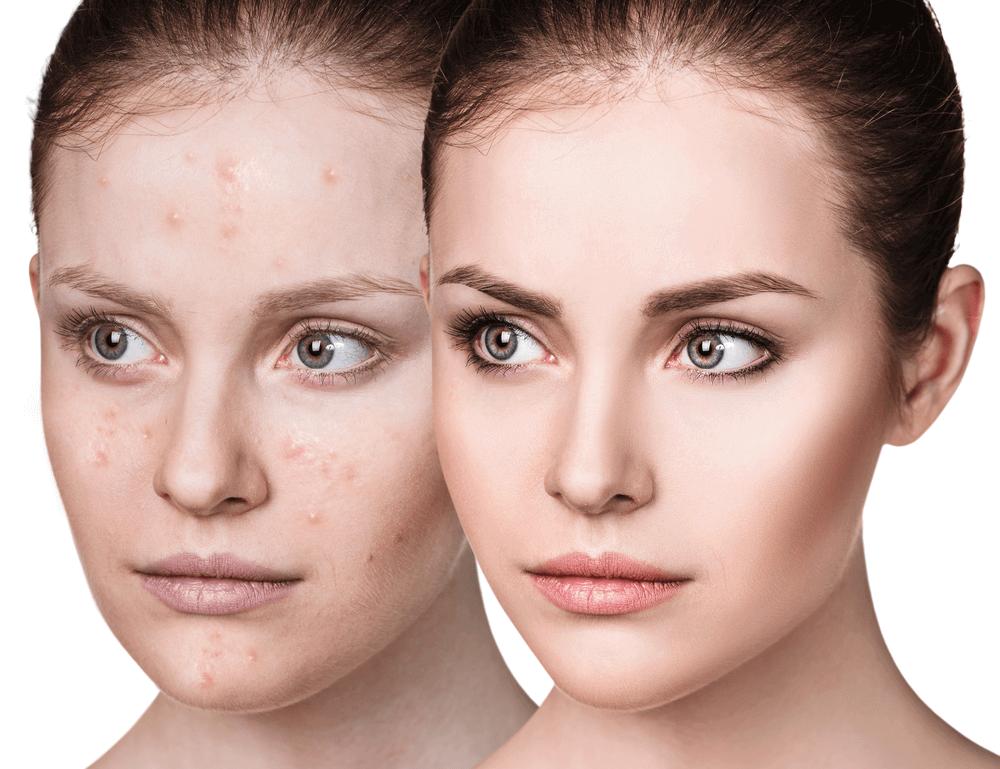 Baking Soda For acne Treatment