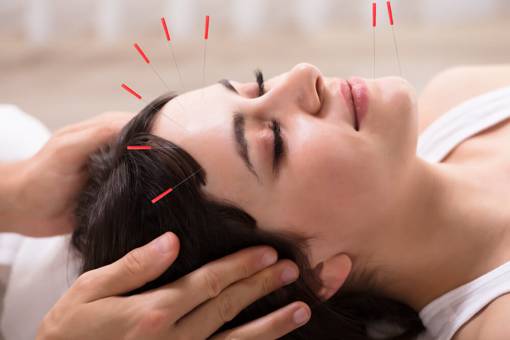 How to use acupuncture for cluster headaches?