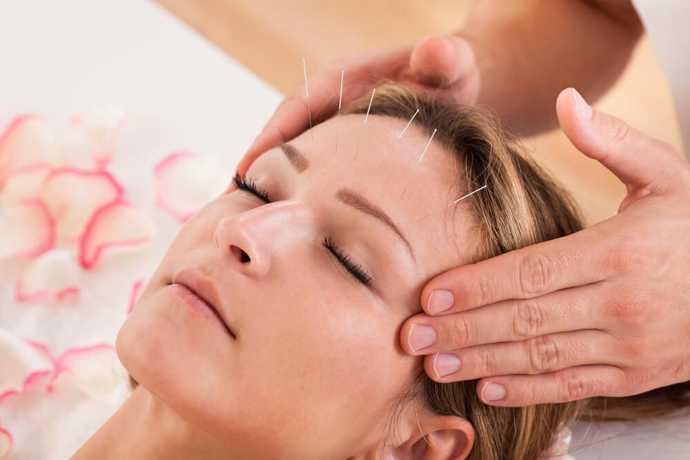 Acupuncture Cure Migraines