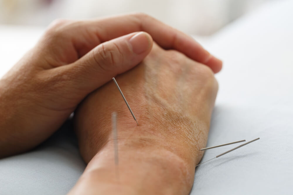 Acupuncture Points for Treating Wrist Pain