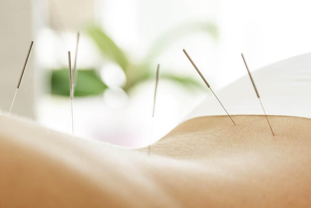Acupuncture for sciatica treatment
