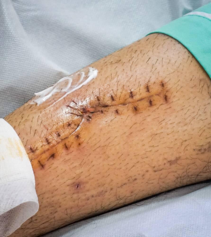 Cicatrisant