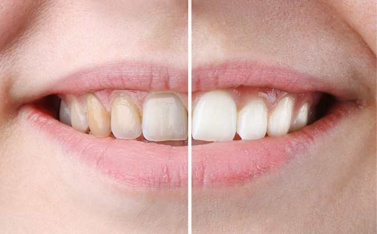 Foods for teeth whitening