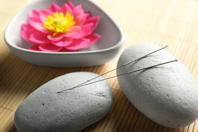 Tips on Acupuncture for Pregnant