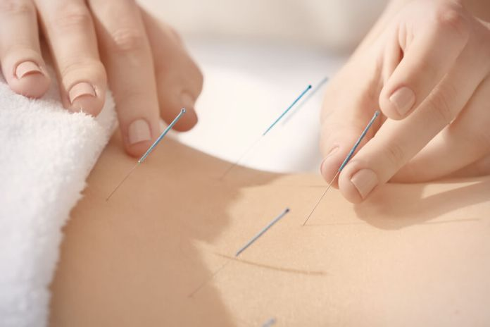acupuncture points for sciatica