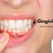 How to cure gingivitis