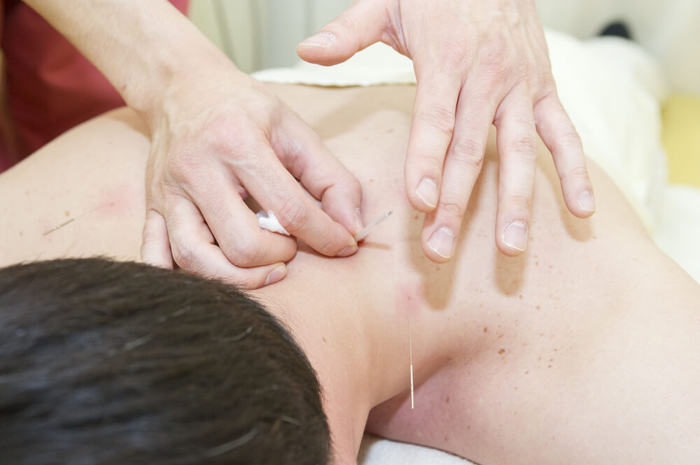 treatment for neck pain acupuncture