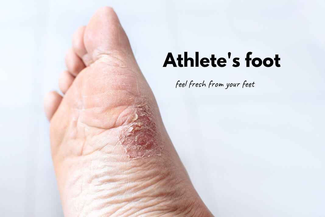 Athlete's foot