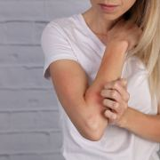 cure eczema with remedies