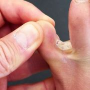 Coconut Oil for Athlete's Foot