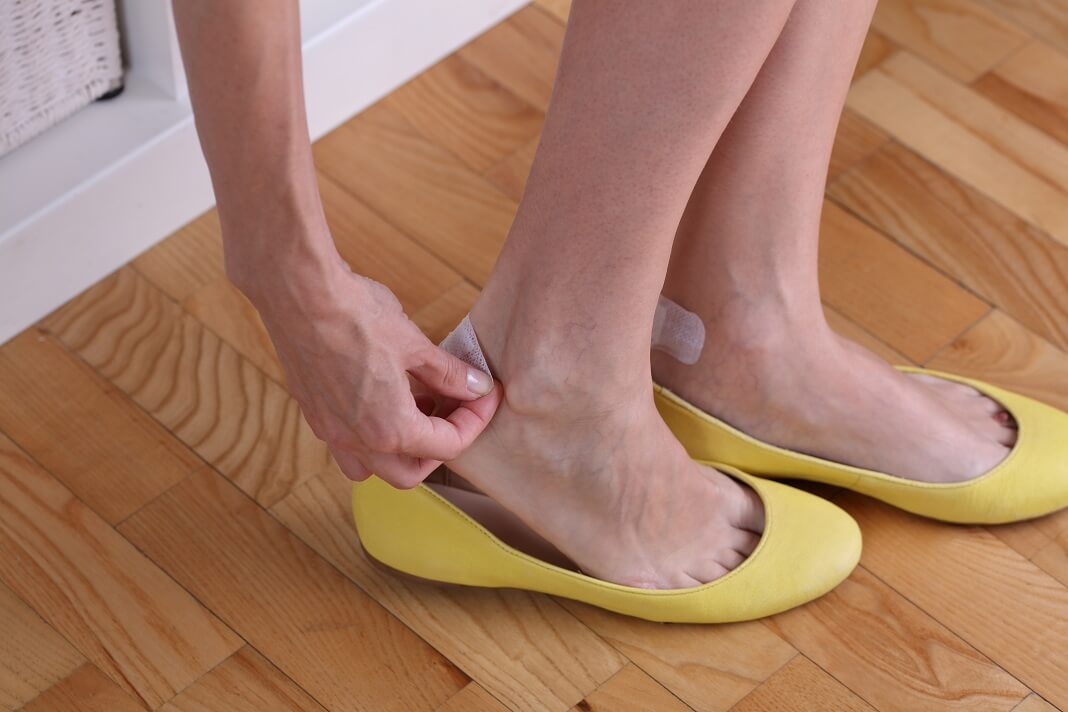 Home Remedies for Blisters