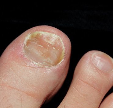 vinegar for toenail fungus