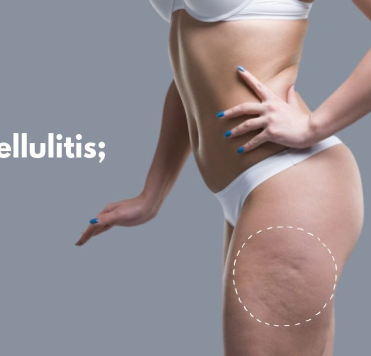 How to treat cellulitis