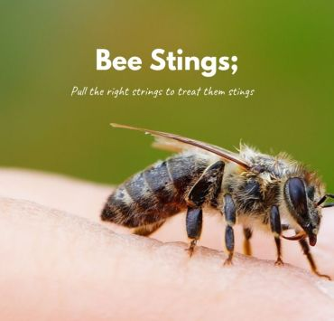 How To Treat Bee Stings