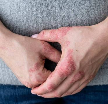 Vitamin d for psoriasis