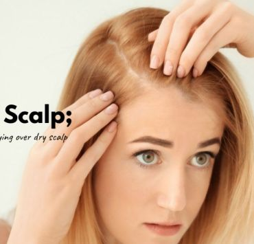 get rid of dry scalp