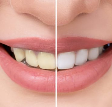 home remedies for teeth whitening