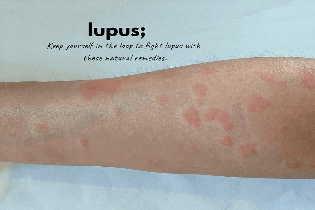 lupus.
