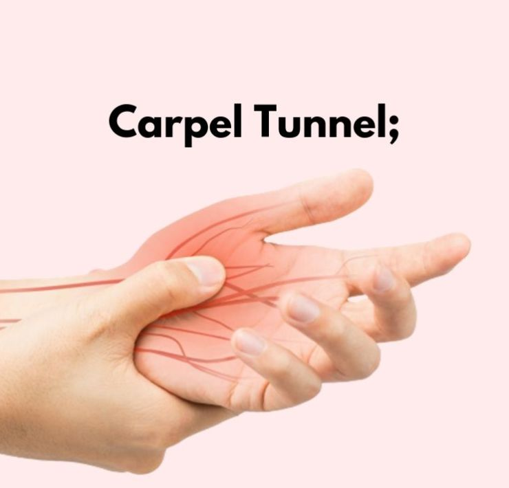 How To Treat Carpal Tunnel