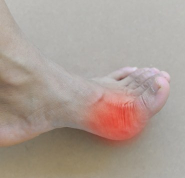 Foods to avoid with gout