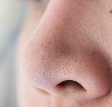 how to get rid of whiteheads on nose