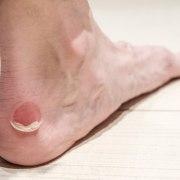 moleskin for blisters