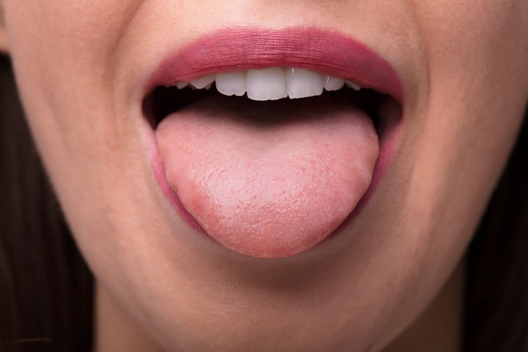 bump on tongue