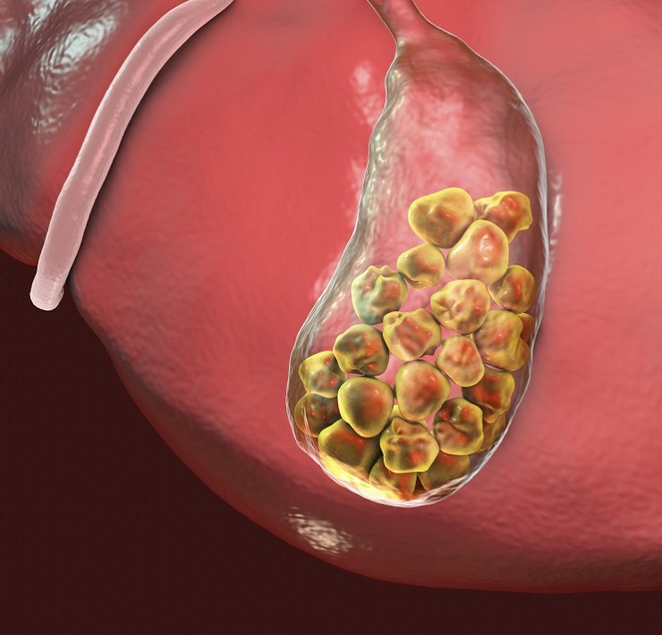 foods to avoid with gallstones