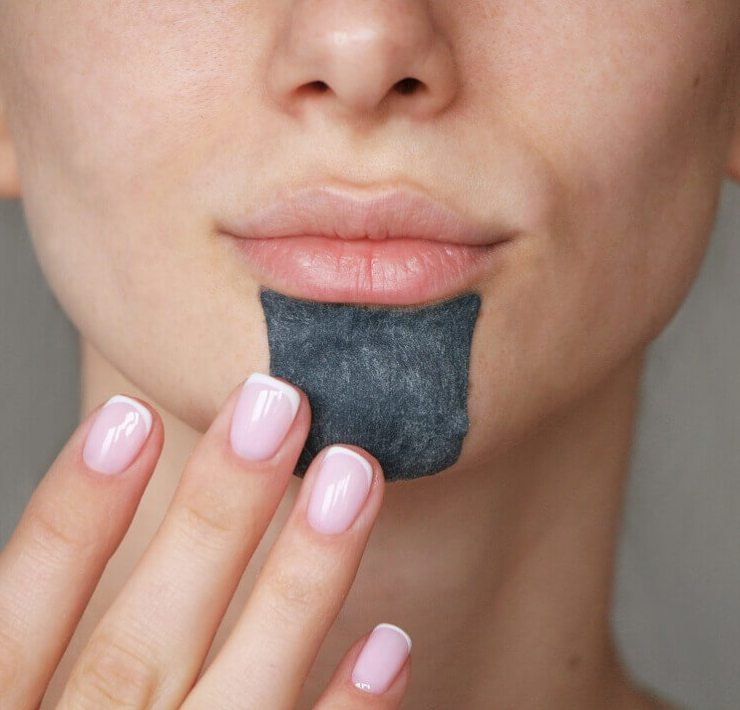 how to get rid of blackheads on chin