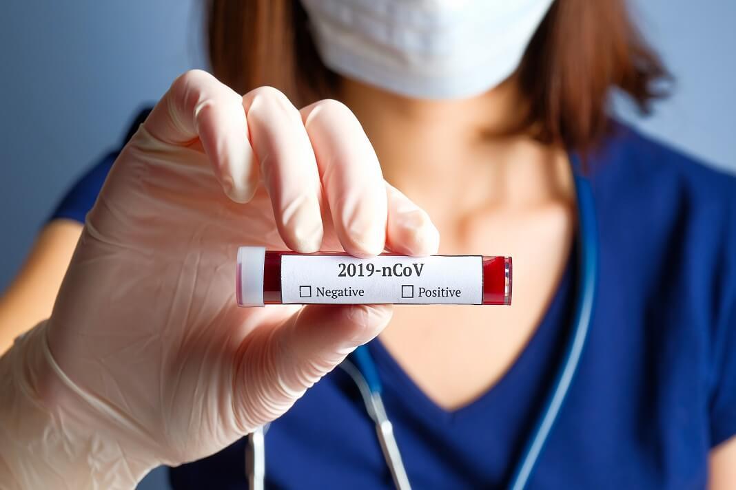 Coronavirus Testing: Everything You Need to Know