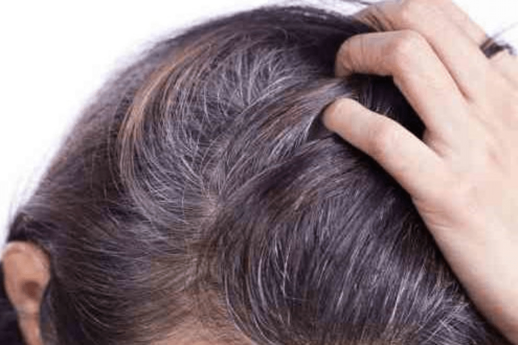 what causes white hair