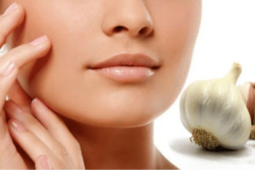 garlic benefits for skin