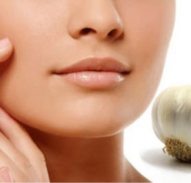 garlic benefits for skin