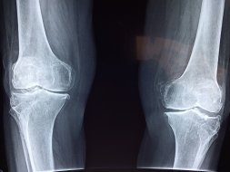 How to find a way to Get Rid of Knee Pain